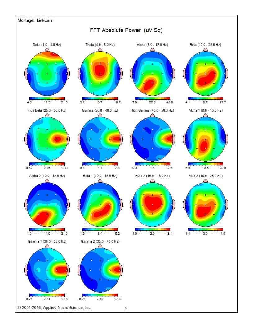 QEEG and LORETA neurofeedback - IMH Naturopathic Clinic Qeeg In Mapping on